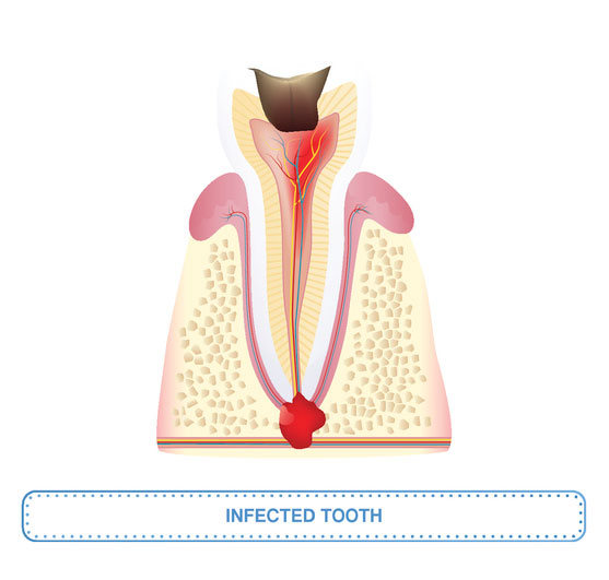 Root Canal Treatment Providence RI